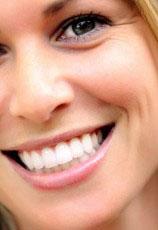 відбілити зуби